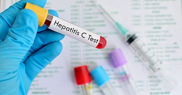 hepatitis 580x304